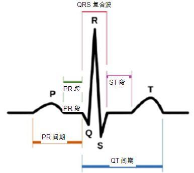 心电图中的P-QRS-T波