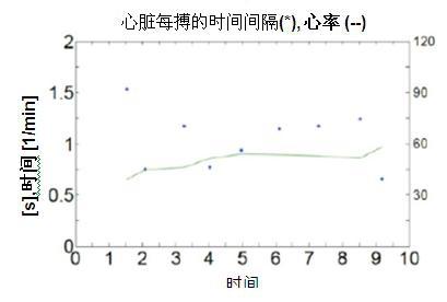 SCA121T加速度传感器测量浴室电子称的心脏冲击扫描图波形